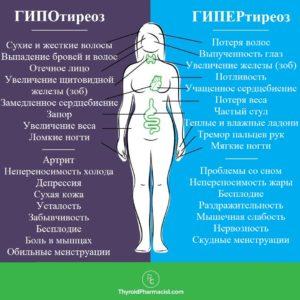симптомы гипотиреоза гипертиреоза