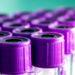 Топ 10 тестов для оценки функции щитовидной железы и их интерпретация